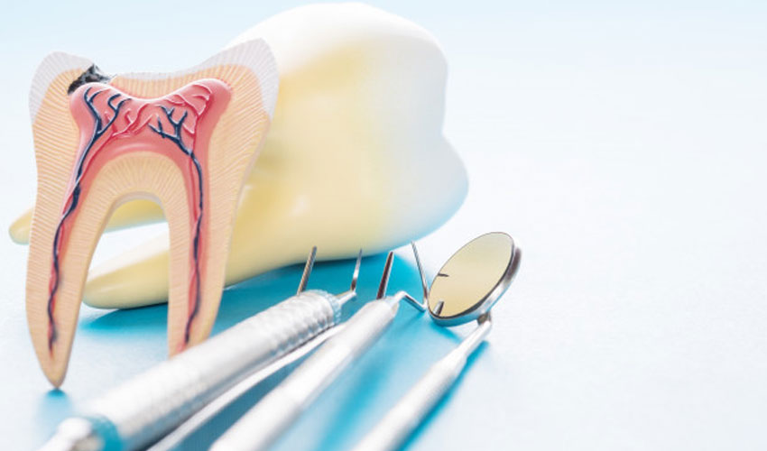 root canal treatment in mangalore