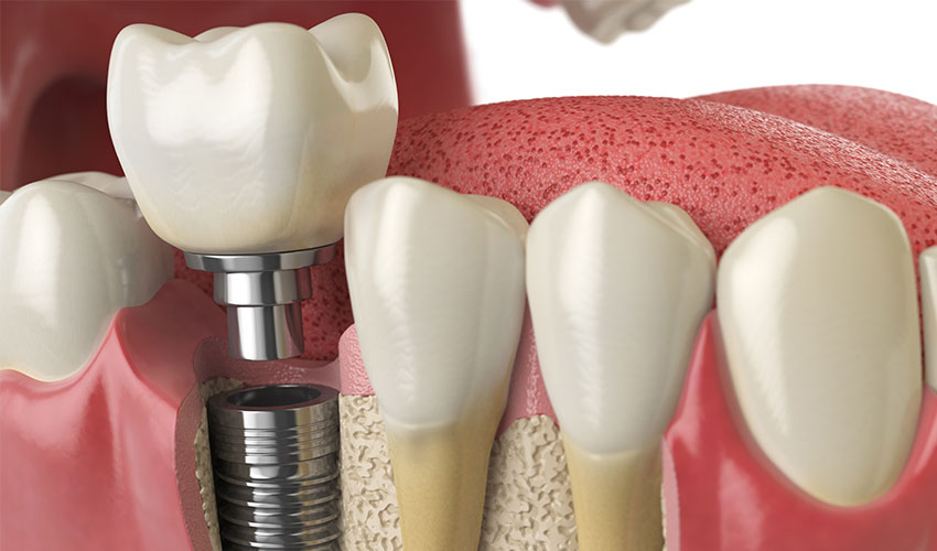 dental implants in mangalore