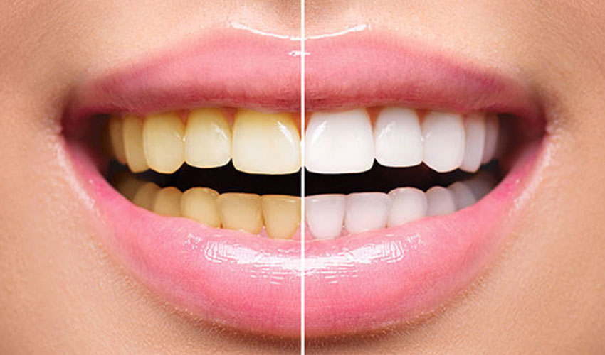 teeth whitening dentist in mangalore